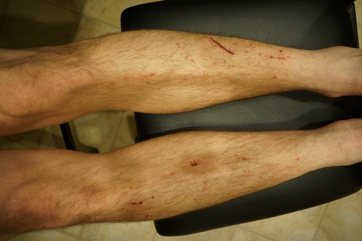 cuts and bruises on legs from off trail hiking